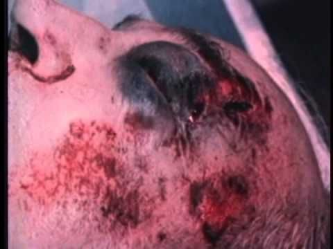 13 best forensics images on pinterest forensics forensic science autopsy documentary crime scene autopsy autopsy examination part ii youtube fandeluxe Gallery