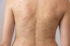 Como eliminar el acne de la espalda!  Registrate http://tiendanaturistaonline.com/Detalle/476/zacubea-ayoa-12-extractos-375-ml/