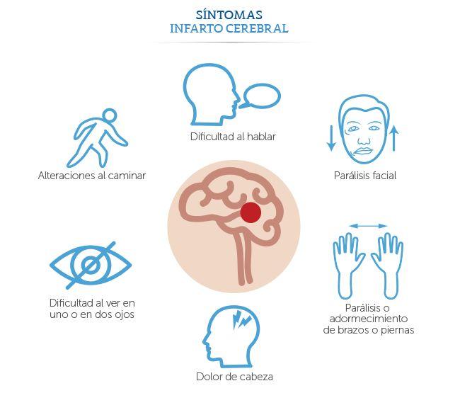 Médica Sur: Síntomas de un infarto cerebral