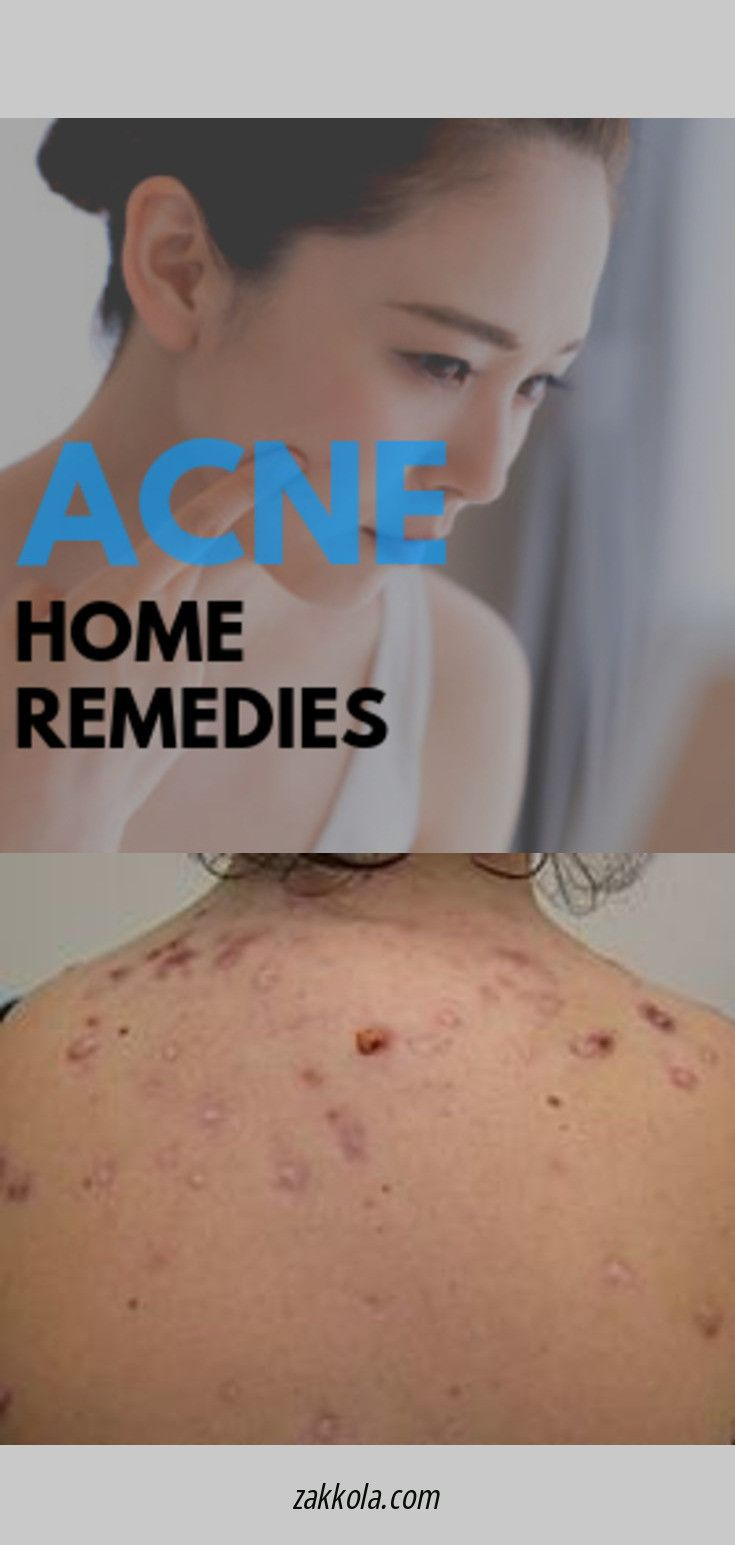 How To Get Rid Of Pimples Acne Overnight Fast Skincare Pimples With Images Back Acne Treatment Face Acne Acne Treatment