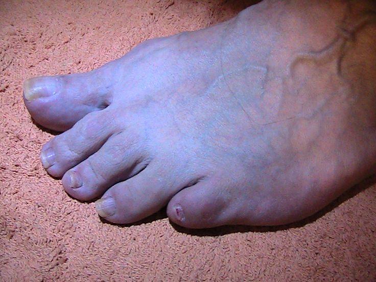 Kuvassa erilaisia kynsimuutoksia. Kaikenlaisia kynsimuutoksia hoitaa jalkojen terveydenhoitoon syventynyt lähihoitaja.