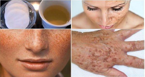 Öregségi és pigmentfoltok eltüntetése arcról és kézről csk két háziszerrel