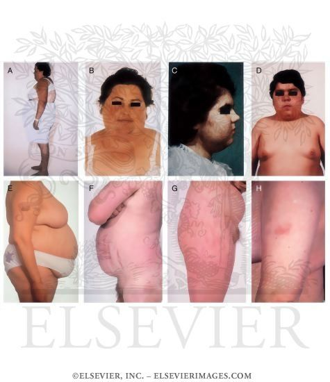 Clinical Features of Cushing's Syndrome   Cushings   Pinterest   Features of and Cushing's syndrome