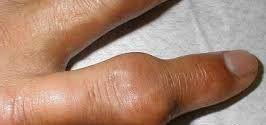 high uric acid - swollen finger