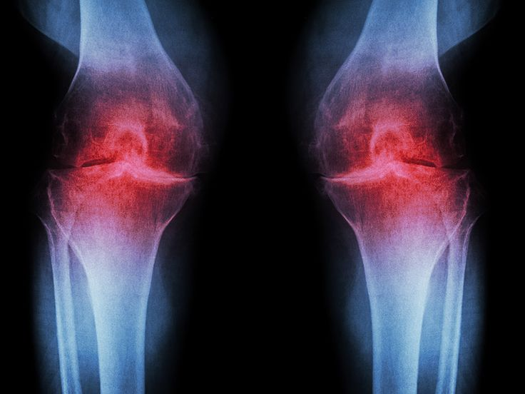Bone marrow concentrate injections show promise for the treatment of knee osteoarthritis. Is there an optimal cell dose?