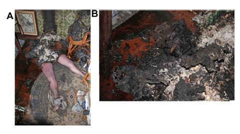 Figure 1 General findings at the scene.