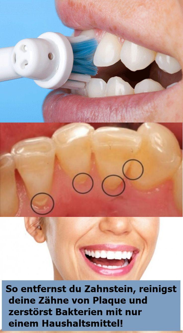 So entfernst du Zahnstein, reinigst deine Zähne von Plaque und zerstörst Bakte…