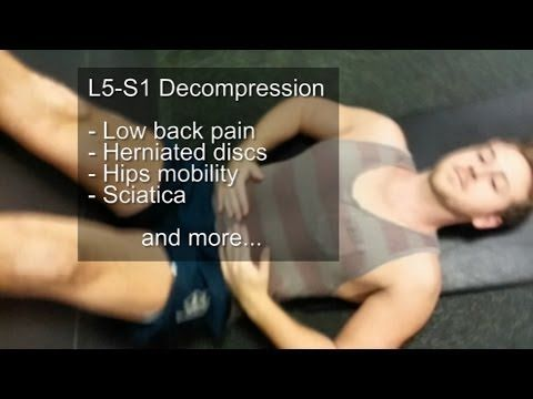L5-S1 Decompression, low back pain, herniated discs, sciatica - YouTube