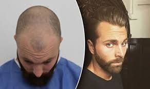 Hair transplant is a surgical method in which hair is taken from a part of the body to a bald part. If you are suffering from hair problems and looking for best #hair #transplant #treatment in the UK. Contact at Revive Hair and Skin Clinic professional doctor for getting best hair transplant treatment in the UK. Get in touch for more info.