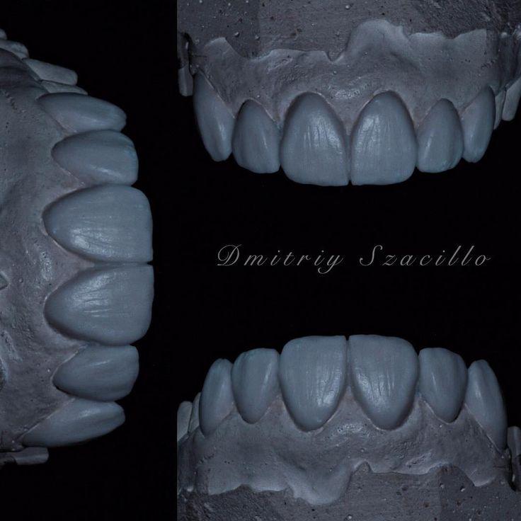 Dental design #photo #dentistryworld #dentalveneers #dentistry #stomatology #dentalhealth #smile #dentistrylife #dentistryworld #dentist #dentalart #dentallab #dent #dentistrylove #dentistrymyworld #dentistrystudent #dentista #dentalassistant #dentalcare #dentistlife #dentaltourism #odontology #odonto #odontolove #odontologia #stomatology #art #dentalteam #dentalanatomy #design #zahnarzt #zahn #