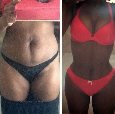 fat transfer before and after - Google Search