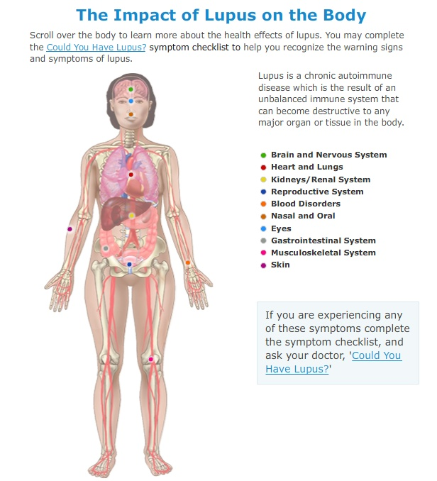 Click through to see a great interactive overview of how lupus can affect your organs.