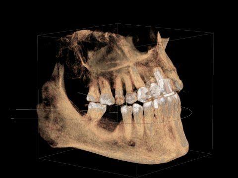 Dental Implants | Dentistry SA