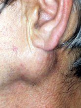 Salivary+Gland+Cancer+Symptoms | swelling of parotid gland w p smith