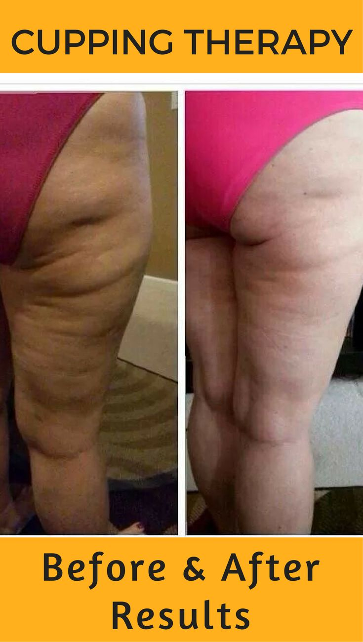 Cupping therapy before and after results. Get rid of cellulite with plastic suction cups.