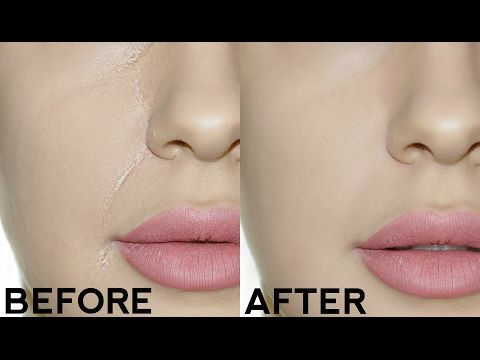 HOW TO STOP FOUNDATION CREASING IN YOUR SMILE LINES!! EASY TRICKS FOR PERFECT MAKEUP!! - YouTube