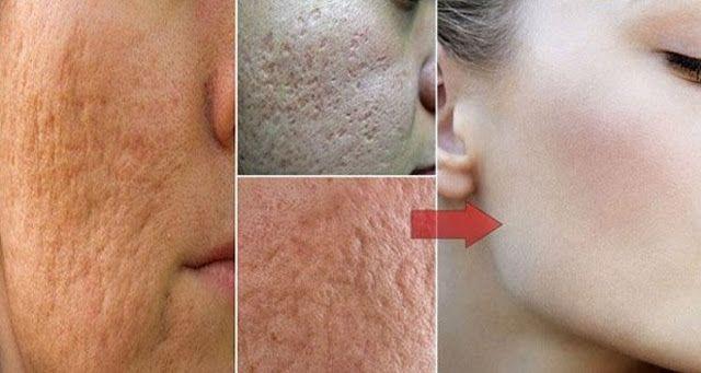 Éliminez vos verrues, vos points noirs, les tâches sur votre peau et de vieillesse Naturellement | Santé Astuce