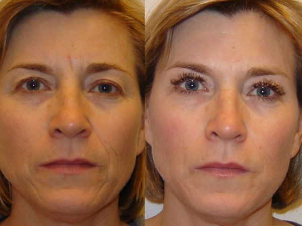 Face Acupressure Workouts To Lose Excess Face Skin And Get Rid Of Face Lines