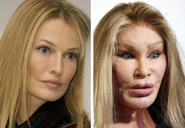 Jocelyn Wildenstein, a socialite, became famous after marrying the French billionaire Alec Wildenstein. Why did Wildenstein, a Swiss woman born with natural good looks decide to ruin her face the way she has? Sources say it all started when her marriage to Alec began to crumble. Alec was a fan of big cats, and Mrs. Wildenstein thought it would please him to make herself look more like one.