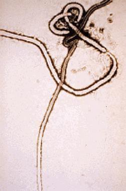 Ebola Virus Infection: Practice Essentials, Background ...