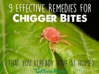 9 Effective Remedies for Chigger Bites (You Have At Home)