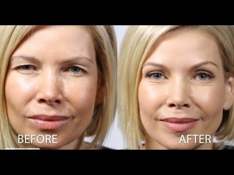 New No Surgery way to lift heavy, hooded lids- Contours RX Lids by Design - Wrinkles - Skin Care The Beauty Authority - NewBeauty
