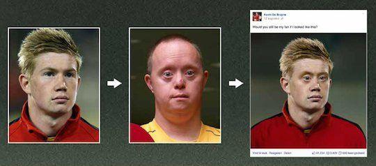 「こんな顔になってもファンのままでいてくれる?」超人気サッカー選手が炎上覚悟のSNS投稿で、知的障害者のオリンピックを超満員に!