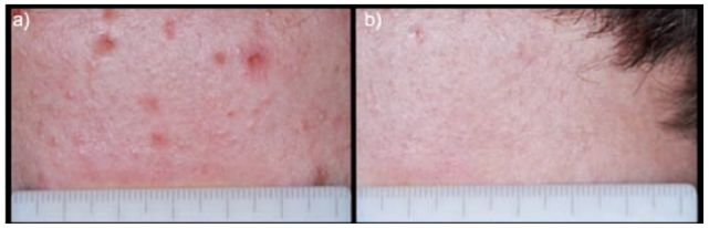 A patient's skin before and after seven weeks' use of BiRetix