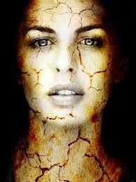 SEGUROS PRIZA te dice El color de la piel y estar expuesto a la luz solar pueden aumentar el riesgo de presentar cáncer de piel no melanoma y queratosis actínica.. Consulte con su médico si piensa que puede estar en riesgo. Los factores de riesgo para el carcinoma de células basales y el carcinoma de células escamosas son los siguientes: Estar expuesto a la luz natural o a la luz artificial (como en las cámaras de bronceado) por tiempo prolongado.