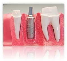 A dental implant basically consists of a titanium screw that is fixed into the jawbone and a crown that replicates your natural tooth. Undoubtedly with an increase in the number of individuals who have already gotten the treatment done, many of you can discuss it with them so that you are sure of the value as well as the benefits of the tooth implant. http://dentalimplantsaz.blogspot.com/2013/04/dental-implants-in-arizona-advancements.html