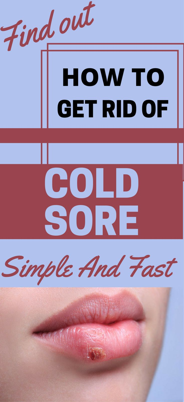 Myke ⁓ Top Ten How To Get Rid Of Cold Sores Fast Reddit
