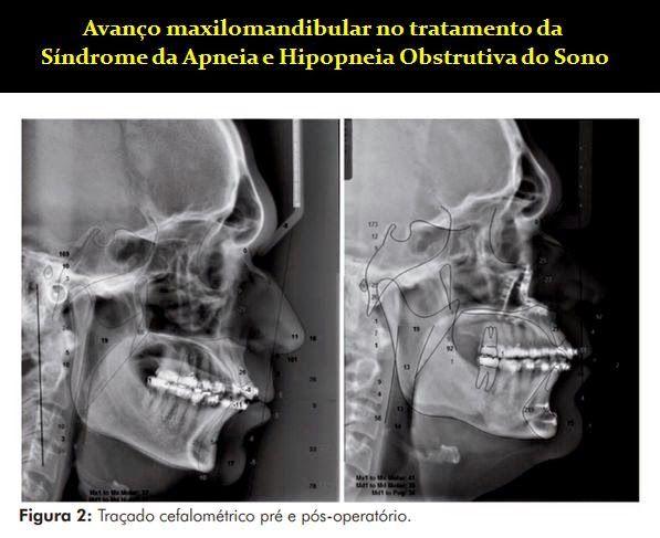 Avanço maxilomandibular no tratamento da Síndrome da Apneia e Hipopneia Obstrutiva do Sono | OVI Dental