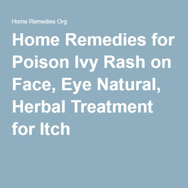 Home Remedies for Poison Ivy Rash on Face, Eye Natural, Herbal Treatment for Itch
