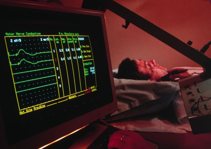 How to Understand Your EMG and NCS Results