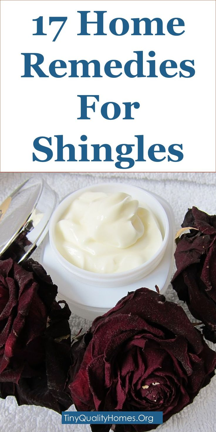 17 Home Remedies For Shingles: This Guide Shares Insights On The Following;  Shingles Treatment Cream, Home Remedies For Shingles Nerve Pain, Shingles Pain Relief Apple Cider Vinegar, Can You Use Calamine Lotion For Shingles?, How To Cure Shingles, Shingles Nerve Pain Relief, Shingles Pain Management, Shingles Treatment Rest, Symptoms And Relief From Shingles, Etc.