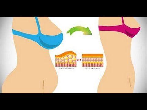 Zupa czosnkowa! 100 razy bardziej skuteczna niż antybiotyki! | Motywator Dietetyczny