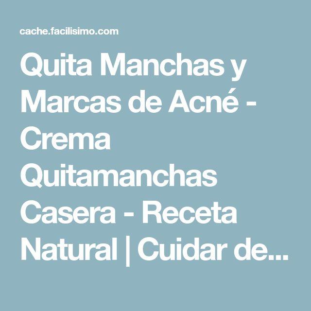 Quita Manchas y Marcas de Acné - Crema Quitamanchas Casera - Receta Natural | Cuidar de tu belleza es facilisimo.com