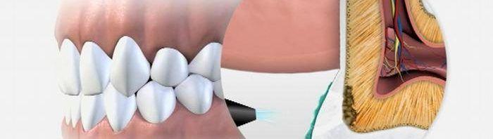 تعرف على اضرار بقايا جذور الاسنان و اشكال جذور الاسنان