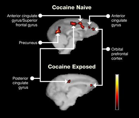 how to help a cocaine addict
