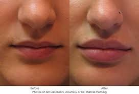 Image result for restylane lips before and after                                                                                                                                                                                 More