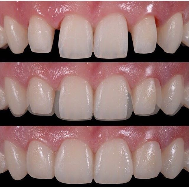 Before and after phoyos of cosmetic dentistry.