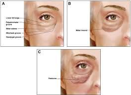 Image result for facelift before and after festoons and malar bags