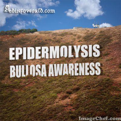 Epidermolysis Bullosa Awareness ebinfoworld.com #EBawareness #wefighteb