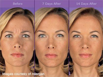 Botox Wilmington DE #acne #AcneScars #botox # ...