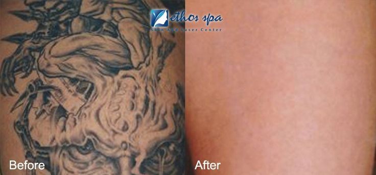 Ethos Spa Skin & Laser Center provides world's first picosure laser for tattoo removal in NJ. We own and operate the Picosure laser at the Summit & Englewood, NJ. #tattooremovalpicosure