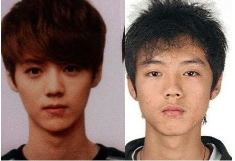 EXO plastic surgery
