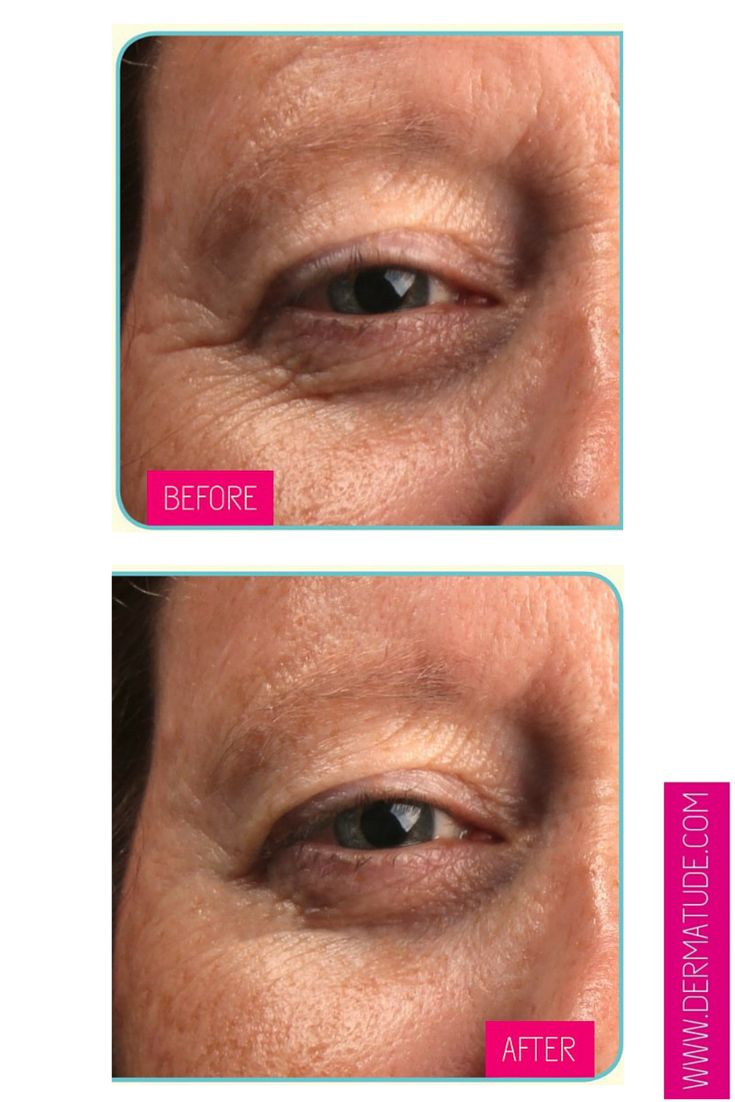 #Dermatude Before and After: Eyes