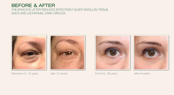 BYAS eye lifter, before and after