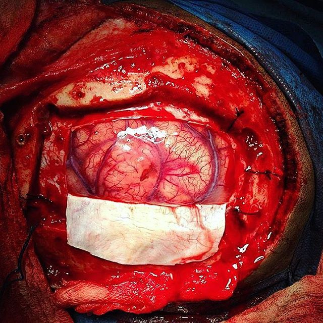 Neurosurgery! what can we say about an open brain surgery that isn't impressive?  The brain tissue here is fully exposed after surgically removing a bone flap (craniotomy) and the dura mater overlying the brain.  Photo by @davidslopezp