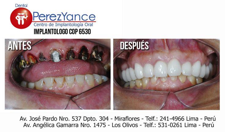 Un implante dental, también conocido como implante endostal es  un dispositivo  quirúrgico que reemplaza uno o mas dientes cambiando el estado actual. El termino  implante dental se refiere a esa porción de la estructura del hueso.
